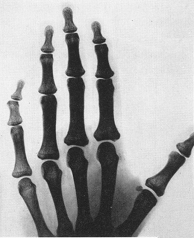 Myths Of Human Genetics Bent Little Finger